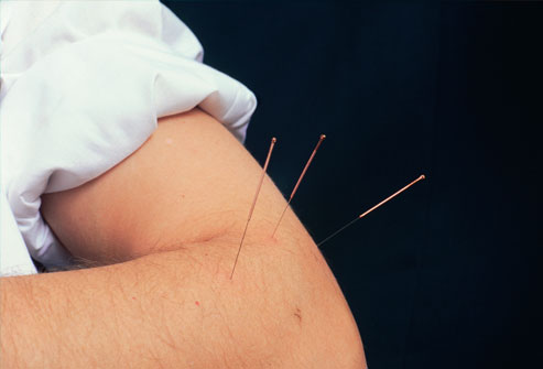 phototake_rm_photo_of_acupuncture_needle