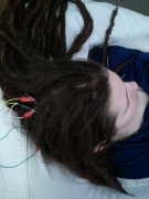 Acupuncture with Electric Stimulation, scalp